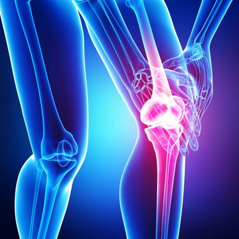Четыре задачи лечения ревматоидного артрита