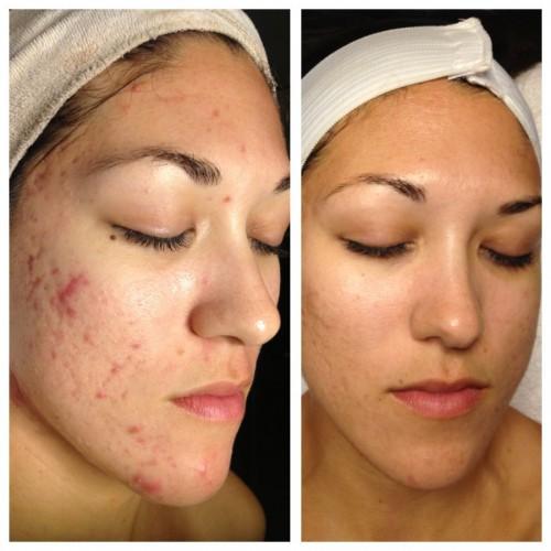 Очистка кожи лица в салоне