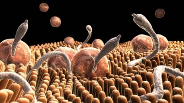 Гельминты-в-кишечнике