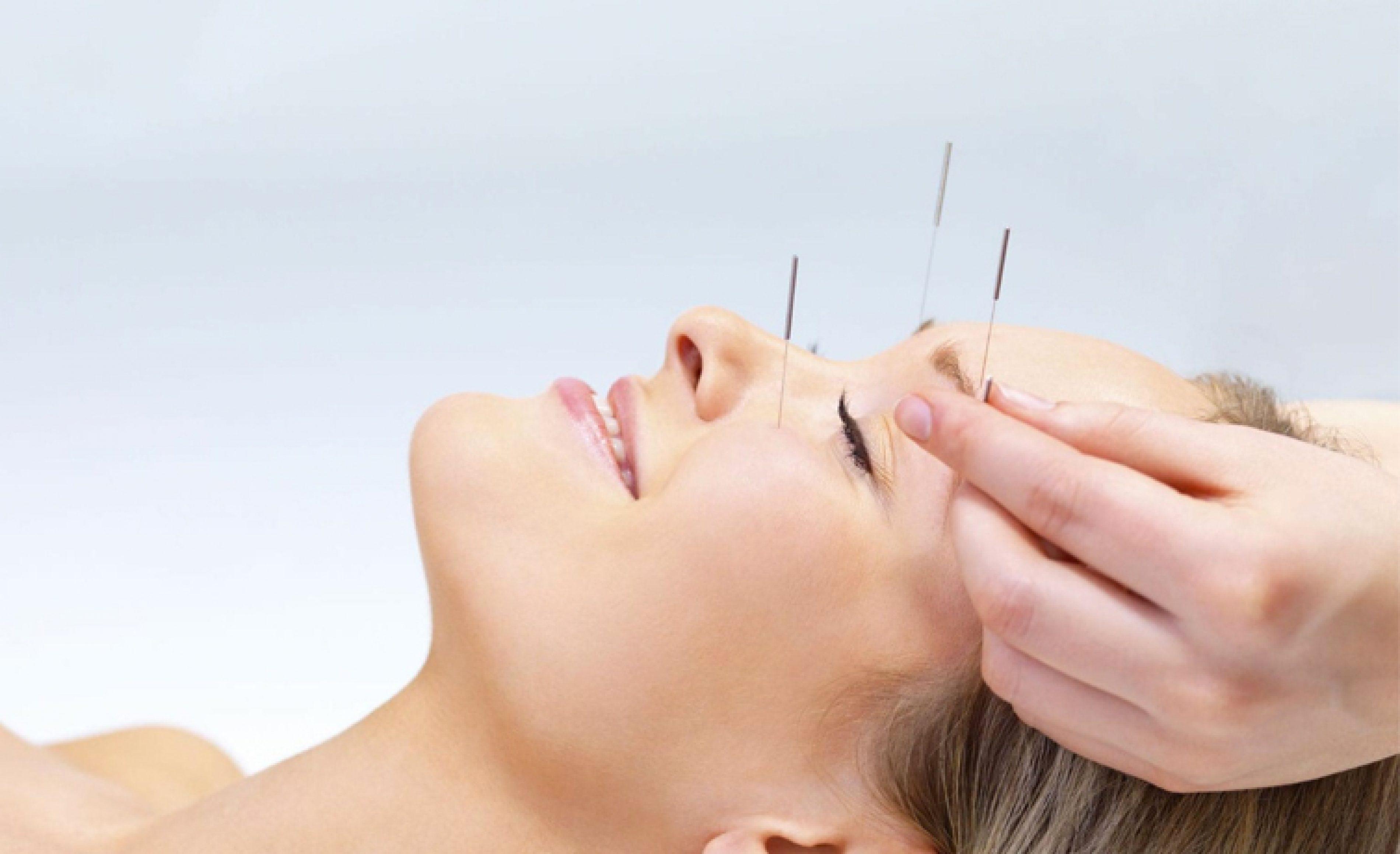 akupunktur-un-zararlari-nelerdir-akupunktur-da-dikkat-edilmesi-gerekenler-nelerdir-3800x2318_c