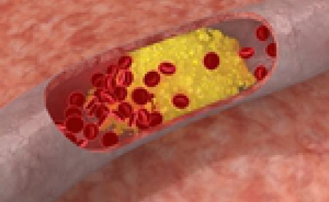 ateroskleroz1