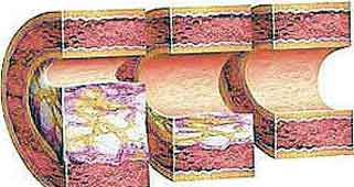 ateroskleroz2