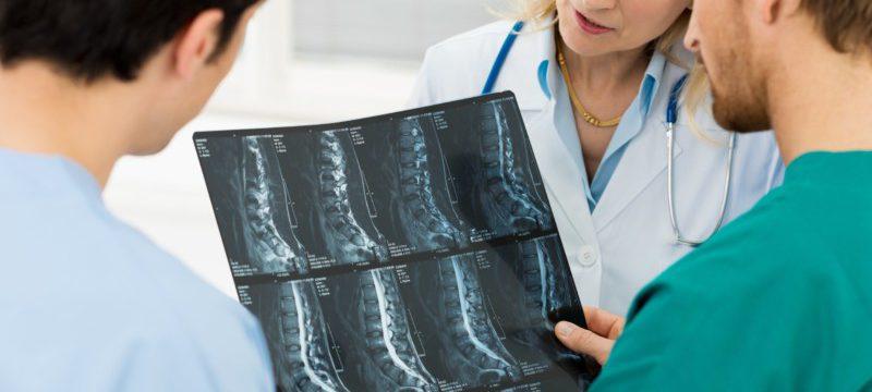 osteohondroz1