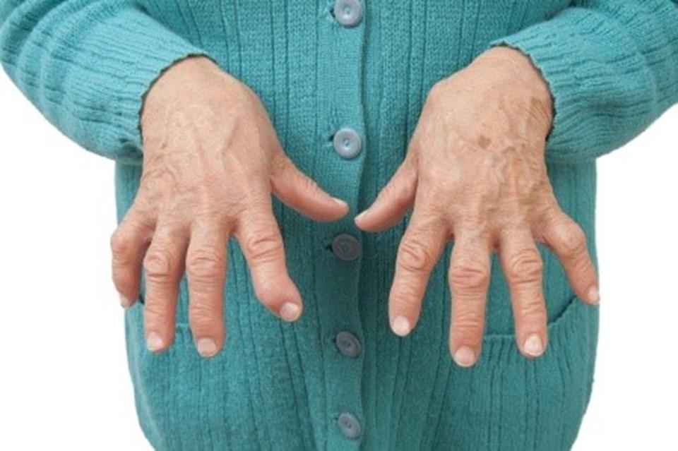 Как выглядит полиартрит