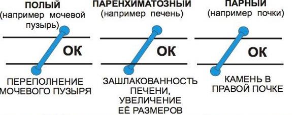 кузьменко5